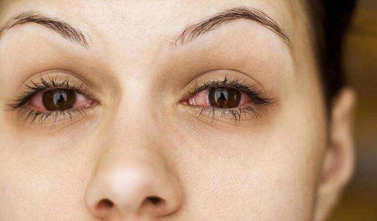 8 signs in your eyes that says your health is in danger